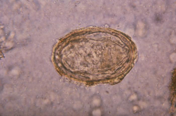 Schistosoma japonicum/CDC
