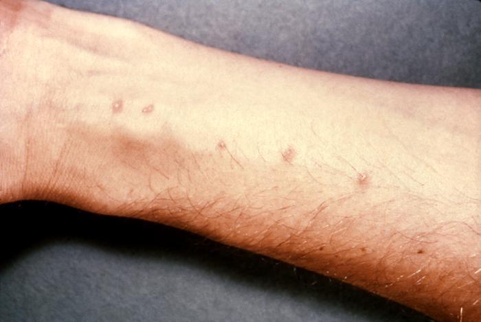 Schistosome dermatitis