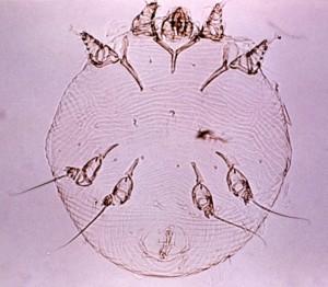 Scabies mite/CDC