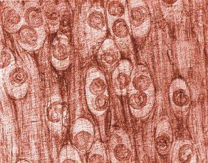 Trichinella spiralis parasite