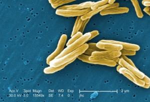 Mycobacterium tuberculosis /Janice Haney Carr