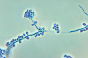 Sporothrix schenckii/CDC