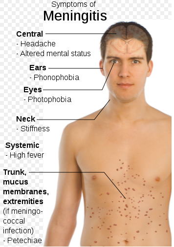 Meningitis symptoms/Public domain image/Mikael Häggström