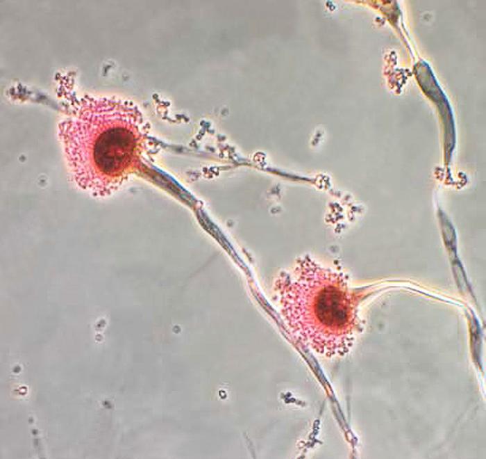 Aspergillus fumigatus/CDC