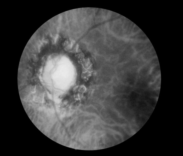 This funduscopic image reveals the effects of late neuro-ocular syphilis on the optic disk and retina/CDC