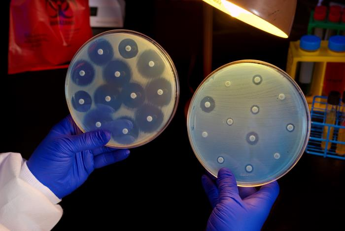 This 2014 image depicts Centers for Disease Control (CDC) microbiologist Kitty Anderson holding up two Petri dish culture plates growing bacteria in the presence of discs containing various antibiotics. The isolate, i.e., bacterial specie, on the left plate is susceptible to the antibiotics on the discs, and is therefore, unable to grow adjacent to the discs. The plate on the right was inoculated with a Carbapenem-Resistant Enterobacteriaceae (CRE) bacterium that proved to be resistant to all of the antibiotics tested, and is therefore, able to grow near the discs/CDC