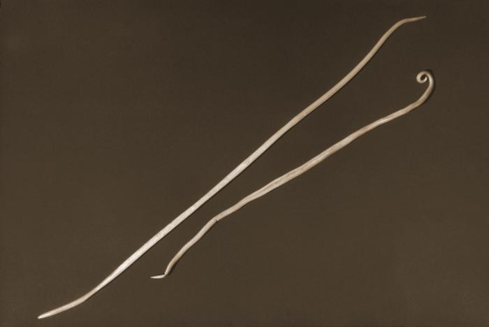 Ascaris lumbricoides/CDC