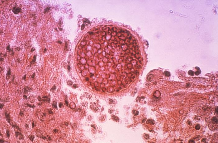 Coccidioides/CDC