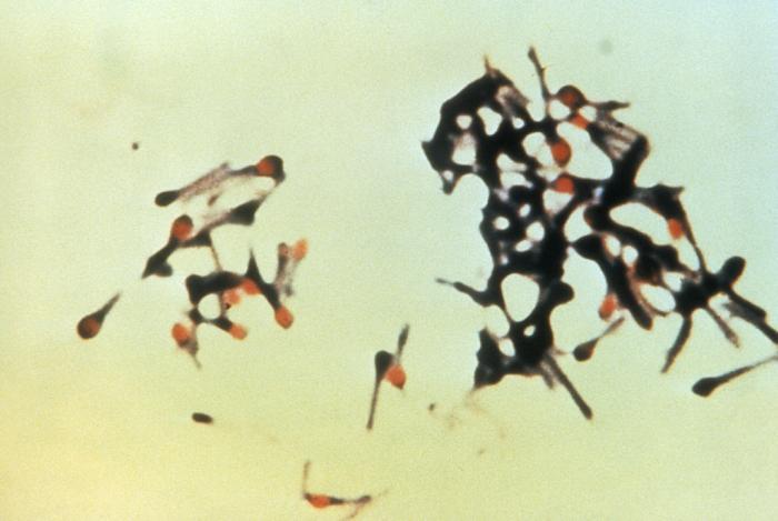 Clostridium tetani /CDC
