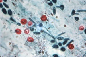 Cryptosporidium/CDC