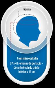 Image/Brazil Health Ministry