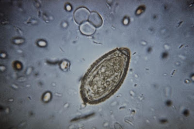 clonorchis egg/CDC