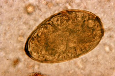Paragonimus westermani egg/CDC