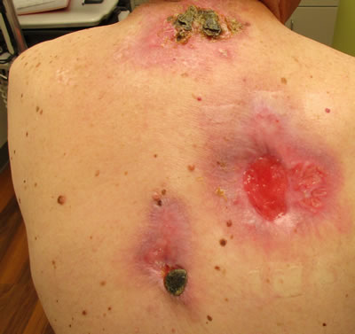 A 70-year-old patient regularly applied black salve to lesions on his back, resulting in ulcerations with cellulitis. Image/American Academy of Dermatology