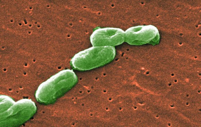Scanning Electron Micrograph of Burkholderia cepacia/CDC