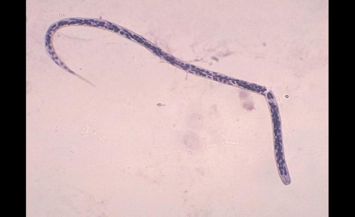 Onchocerca volvulus larvae/CDC