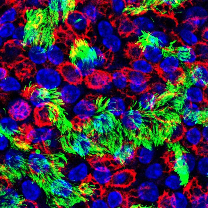 Cells of the upper respiratory tract are where influenza virus infection occurs. Red marks basal cells, green marks ciliated cells, and blue marks cell nuclei. Image/Rebekah Dumm, Duke University