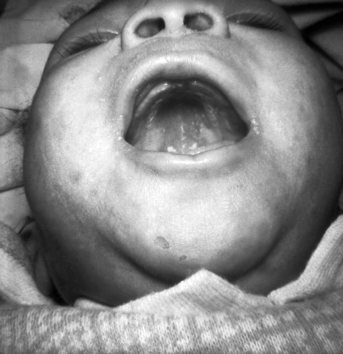 An infant demonstrating mucous patches and skin lesions resulting from congenital syphilis Image/CDC