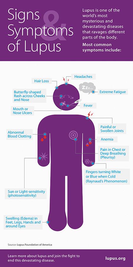 Image/Lupus Foundation of America