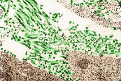 Ebola virus/NIAID, Flickr