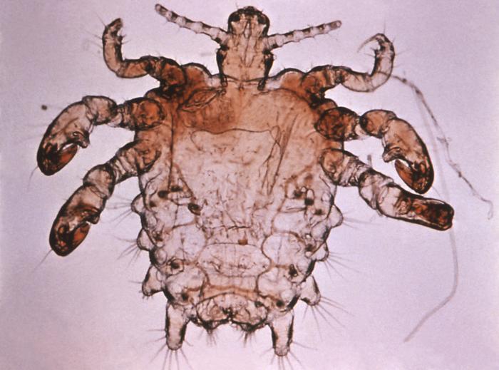 Pubic louse/CDC