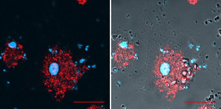 Signs of cell stress are (i) the presence of DNA (shown in blue) -- which is normally confined to the nucleus and mitochondria -- within the cytoplasm and outside of the cell and (ii) activation of the STING pathway accompanied by the formation of punctae (shown in red). Silica crystals engulfed by the cell are visible as translucent grains in the image on the right. Image/David Gosset / P@CYFIC facility / CBM / CNRS
