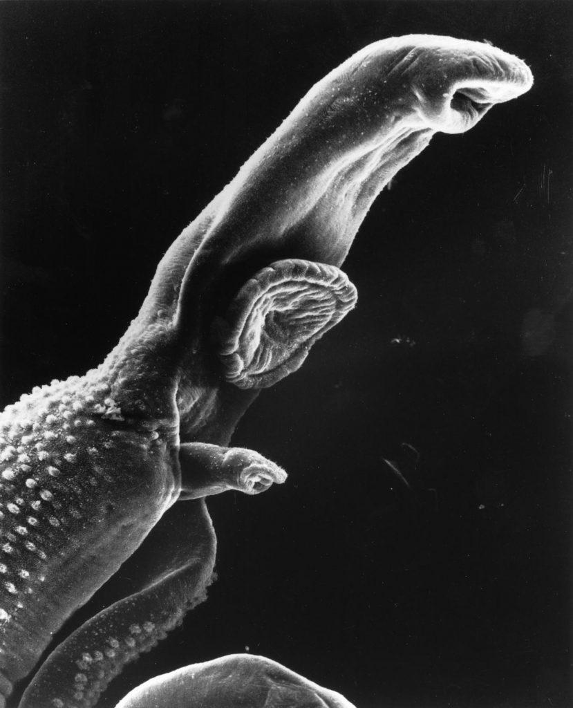 Schistosome Parasite Image/Wetzel and Shaefer, Wikimedia Commons, Public Domain, 2001