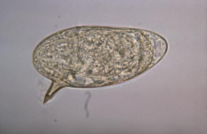 S. mansoni egg Image/CDC